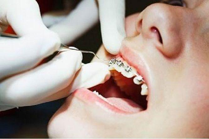 Kết quả hình ảnh cho niềng răng có đau không