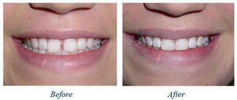 Kết quả trám răng thưa
