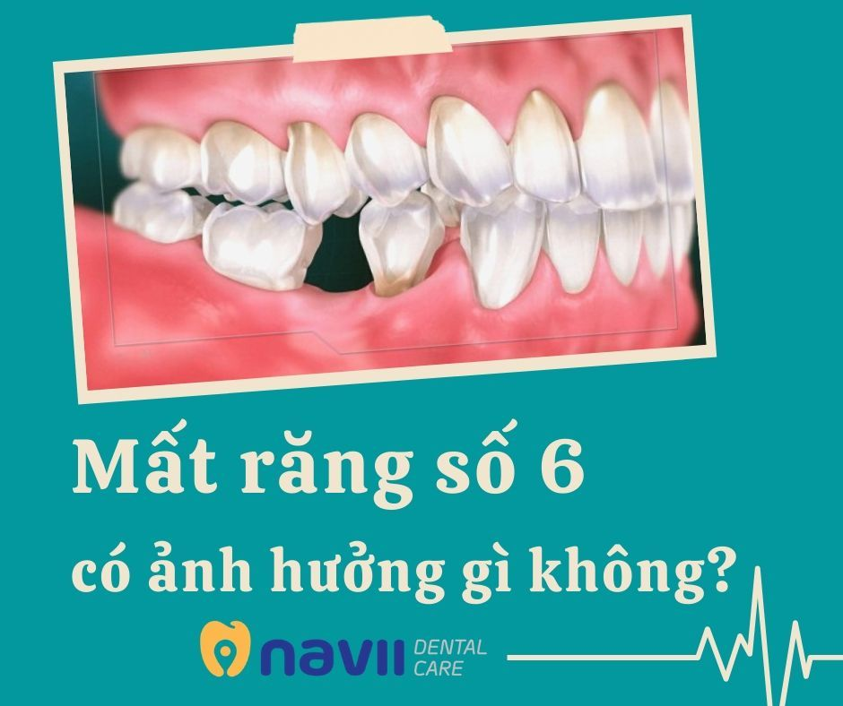 mat-rang-so-6-co-anh-huong-gi-khong-1