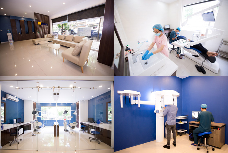 dia-chi-lay-cao-rang-uy-tin-ha-noi-navii-dental-care
