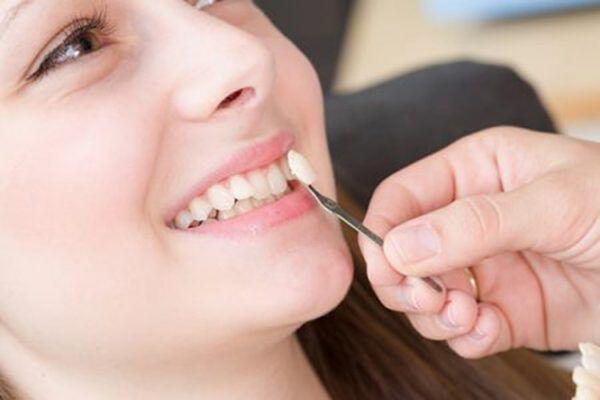 làm răng veneer