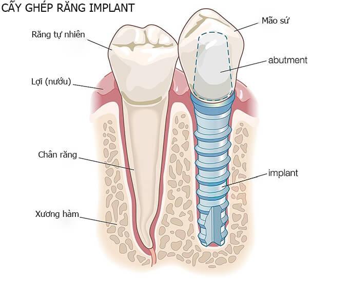 cay-ghep-implant-co-tac-dung-gi