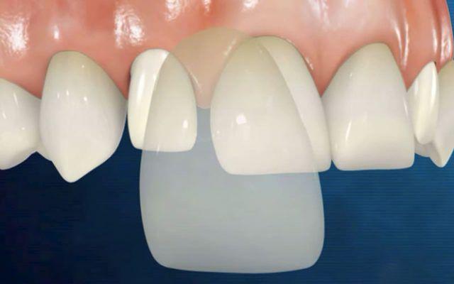 làm răng veneer là gì