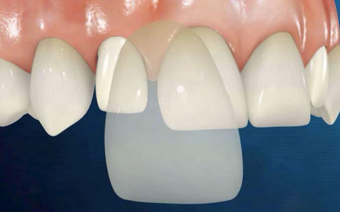 Làm Răng Veneer Là Gì? Làm Răng Veneer Có Phải Mài Răng Không?