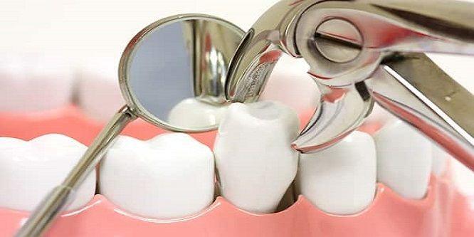 nhổ răng mà không trồng lại có sao không