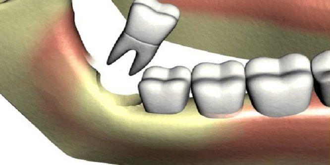 chú ý khi nhổ răng khôn