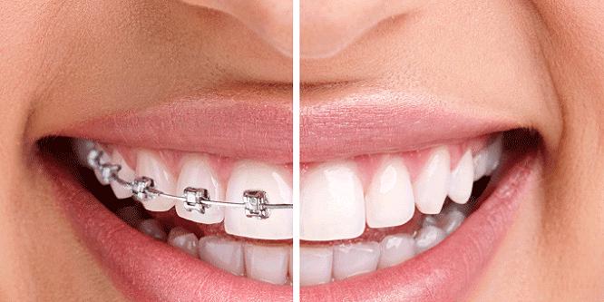 Niềng răng trong suốt Invisalign có hiệu quả không ?