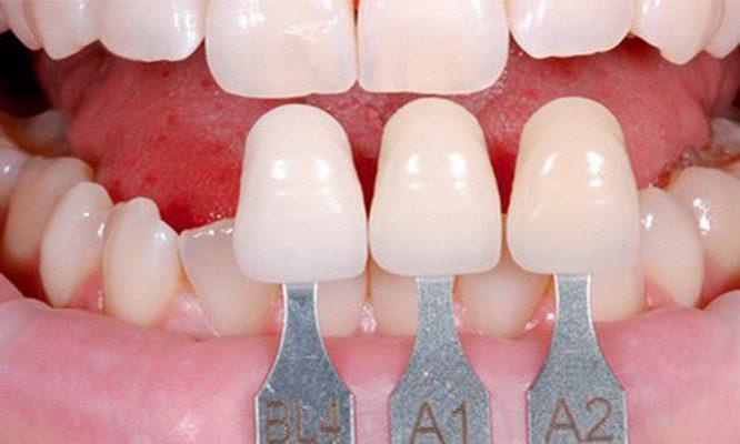 bọc răng veneer