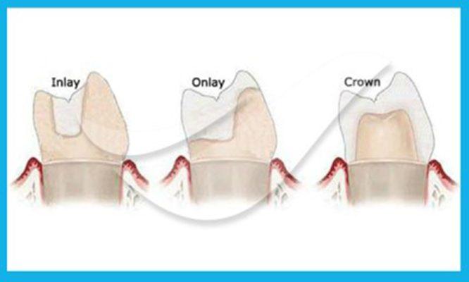 hàn răng inlay onlay