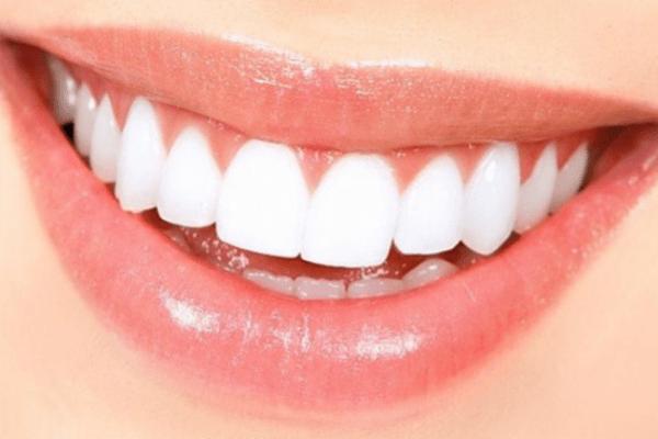 răng sứ veneer