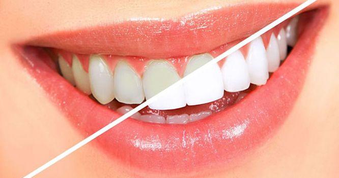 teeth whitening in Hanoi