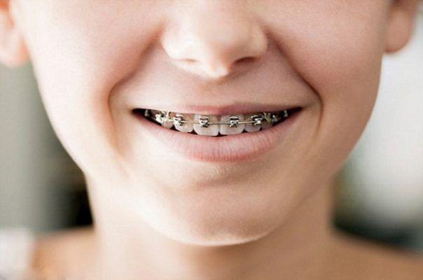 trẻ mấy tuổi thì niềng răng