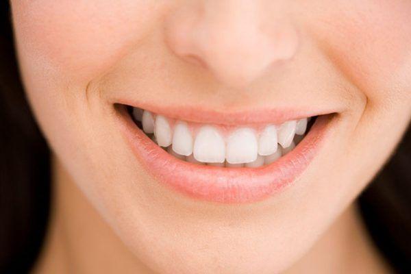 răng veneer