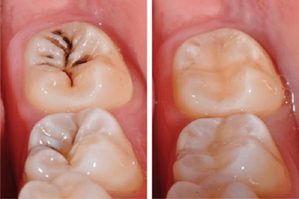 hàn răng loại nào tốt