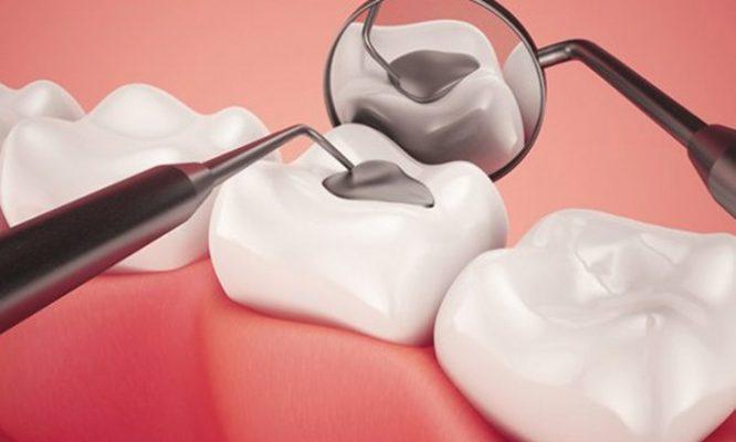 giá hàn răng hàm
