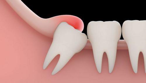 Nhổ răng khôn được chỉ định nhổ bỏ khi mọc ngầm, mọc lệch,..