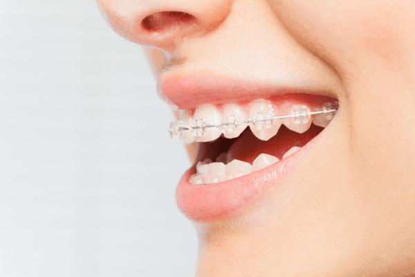 Răng đã bọc sứ có niềng được không?