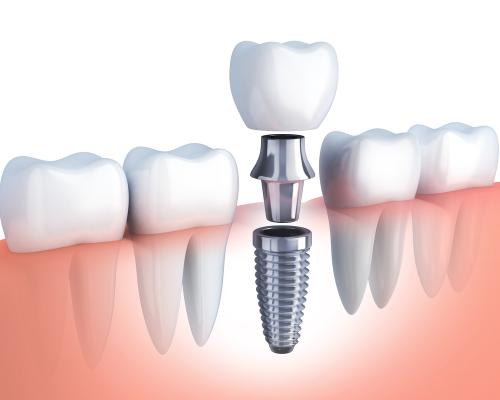 Trồng Răng Giả Implant Bao Nhiêu Tiền