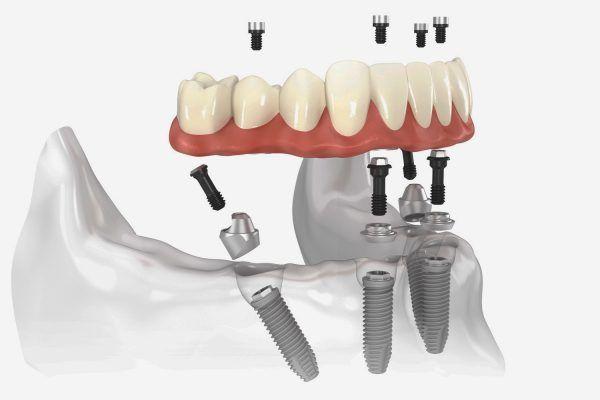 all-on-4 dental tourism