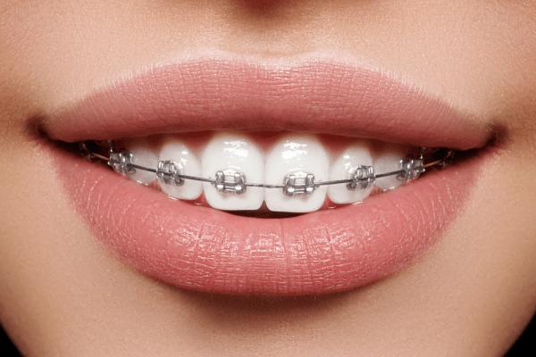 6m braces