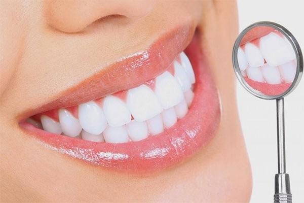 Bọc răng sứ giá bao nhiêu 1 cái